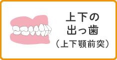 上下の出っ歯(上下顎前突)
