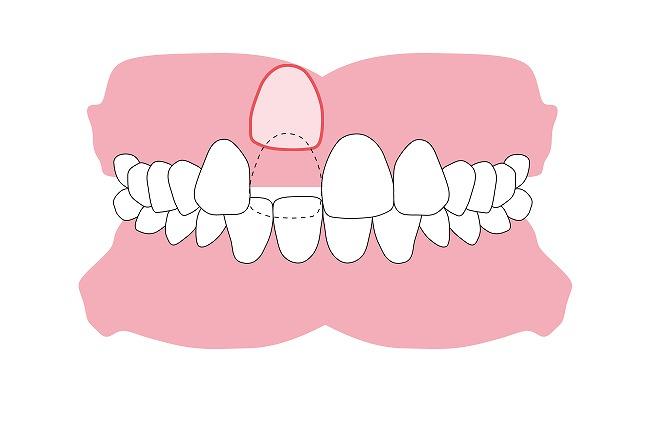 前歯が出ない(埋伏)