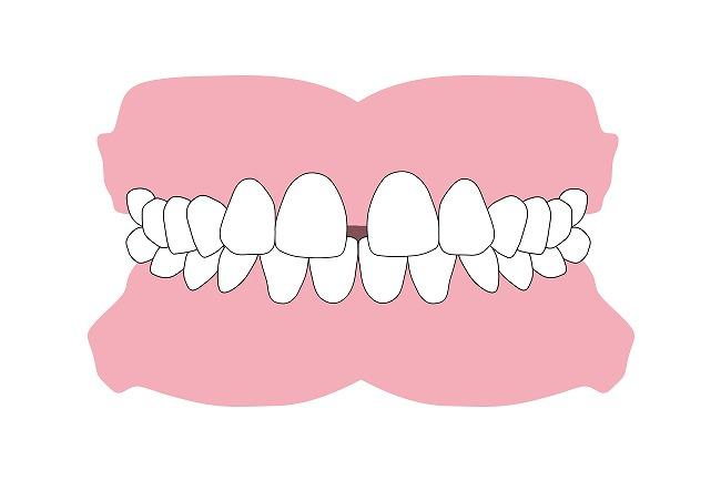 すきっ歯(正中離開)