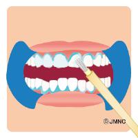 ホワイトニングの薬を歯に塗ります