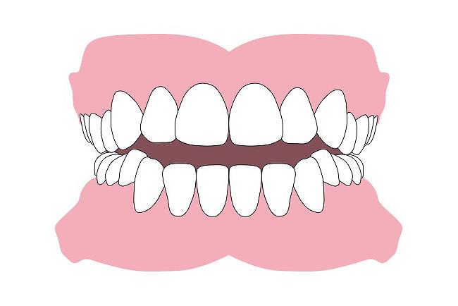 前歯で咬めない(開咬)