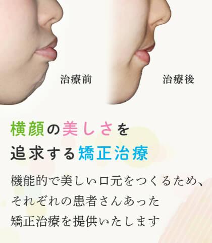 横顔の美しさを追求する矯正治療