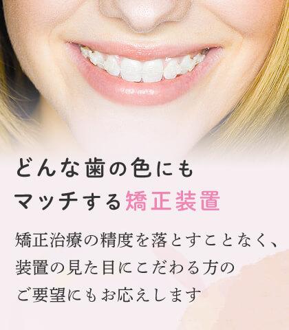 どんな歯の色にもマッチする矯正装置